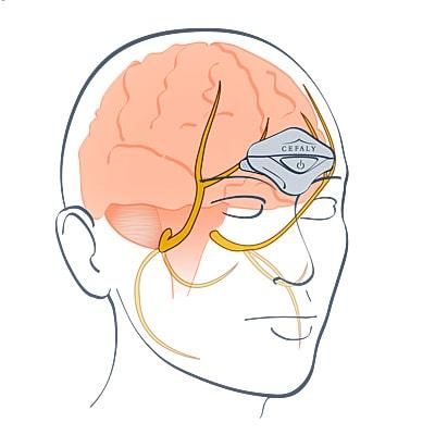 Cefaly is a cranial trigeminal neurostimulator