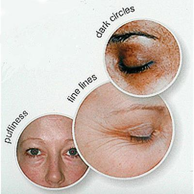 Image of Ionic Care Products effects on the eye zone