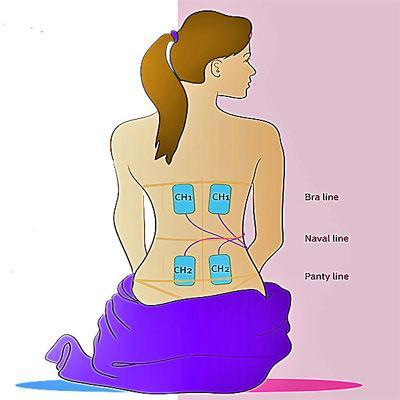 Image of a woman with skin electrodes placed on her back