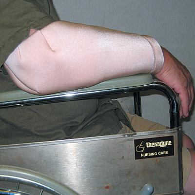 DermaSaver Forearm and Elbow Protector