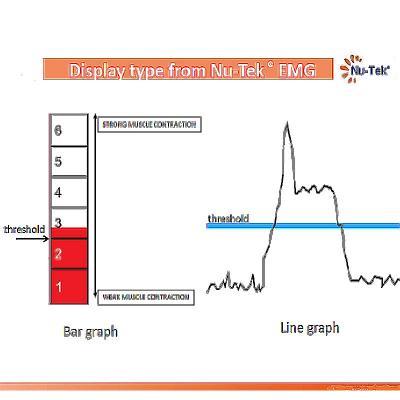 Nu-Tek EMG graphs