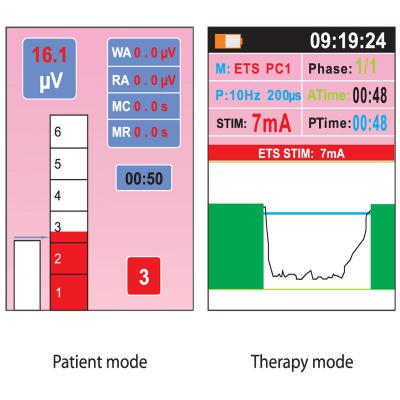 Nu-Tek EMG modes and graphs