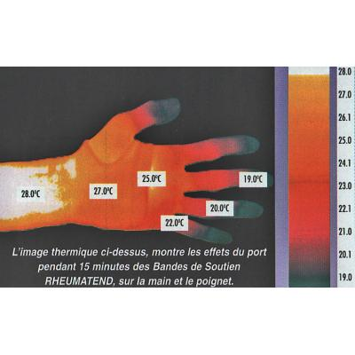 Rheumathend Thermal Copper Joint Supports - thermal image of a hand