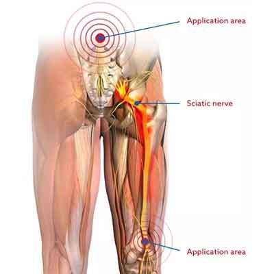 Image of body areas for Sciaticalm treatment points