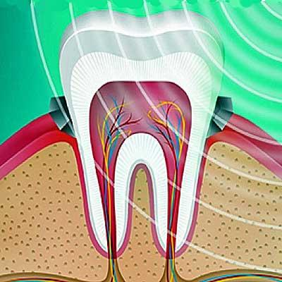 B-CURE Dental Laser heals gums and improves oral health
