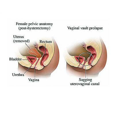 Collapse of vaginal wall