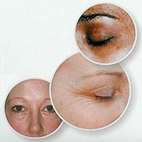 Image of Ionic Eye Care from Oxypeel and Radiance Ranges