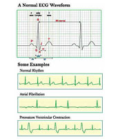 Normal ECG Waveform