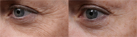 SilcSkin Eyes before after